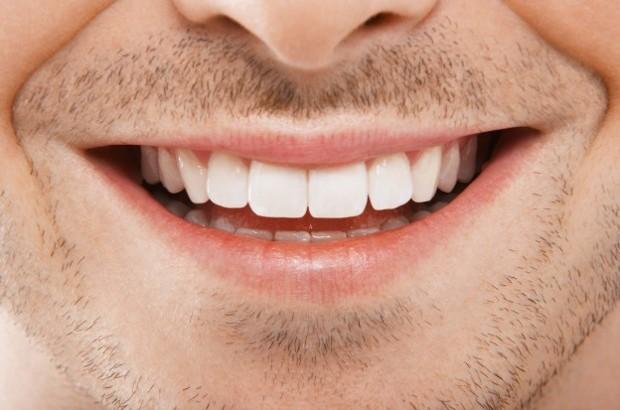sorriso perfetto